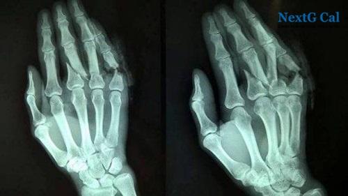 Bị gãy xương bàn tay số 3