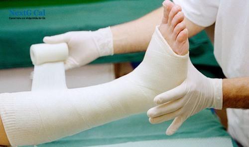 Bị gãy xương cẳng chân bao lâu thì đi được