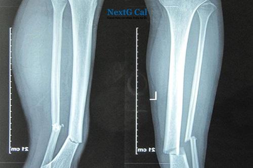 Gãy 2 xương cẳng chân bao lâu thì lành