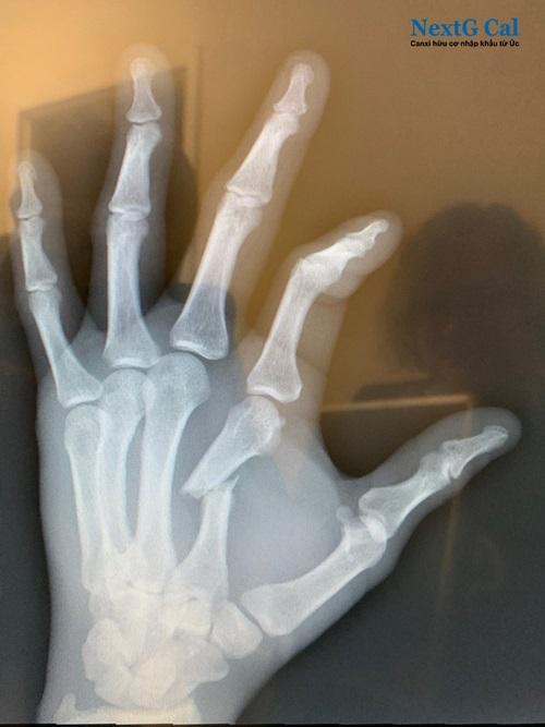 Gãy xương bàn tay bao lâu thì lành