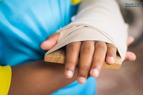 Gãy xương bàn tay bó bột bao lâu