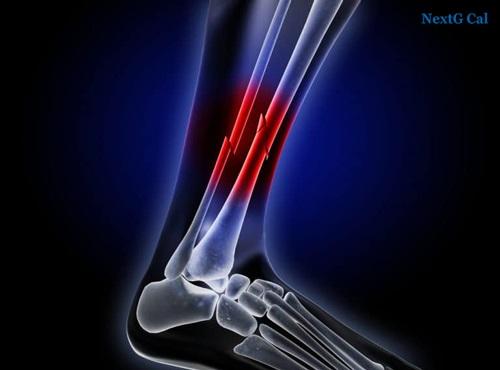 Gãy xương cẳng chân đóng đinh nội tuỷ