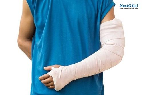 Gãy xương cánh tay ở trẻ em và người lớn