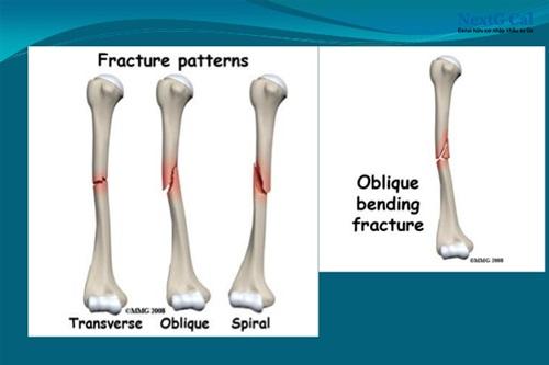 Hình ảnh gãy xương cánh tay