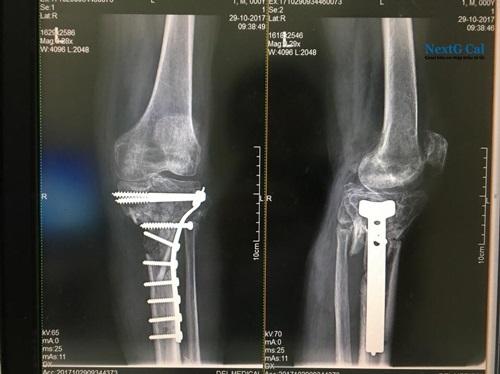 Phẫu thuật gãy xương cẳng chân
