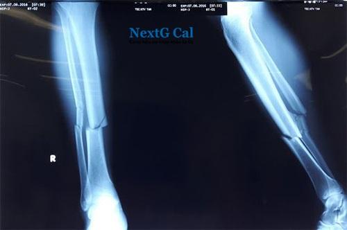 Triệu chứng gãy xương cẳng chân