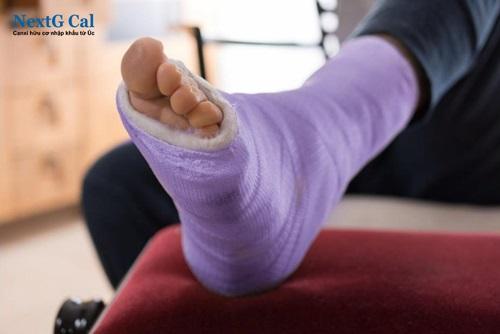 Bị gãy xương cổ chân bao lâu thì lành