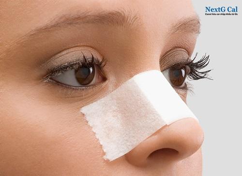 gãy xương mũi và cách điều trị