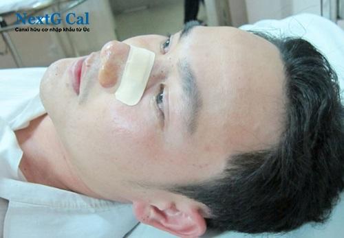 Cách điều trị gãy xương mũi