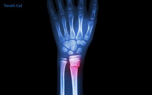 gãy xương quay cổ tay bao lâu thì khỏi