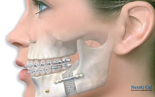 Phẫu thuật gãy xương quai hàm
