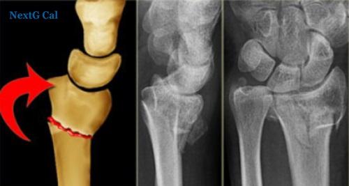 Rạn xương quay cổ tay