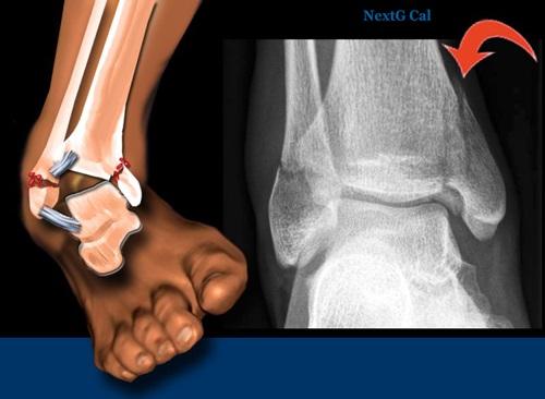 X quang xương cổ chân bình thường